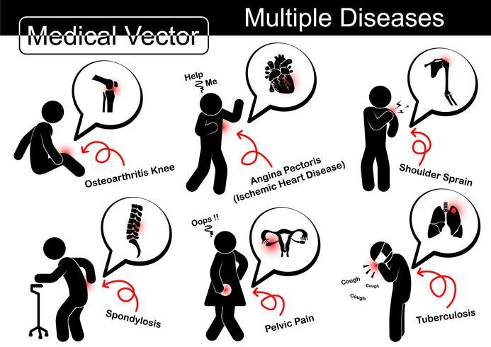 Flera sjukdomar (artros knä, ischemisk hjärtsjukdom, axelförhöjning, spondylos, päls smärta, lung tuberkulos (TB)) vektor