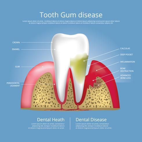 Menschliche Zähne Stadien der Zahnfleischerkrankungs-Vektor-Illustration vektor