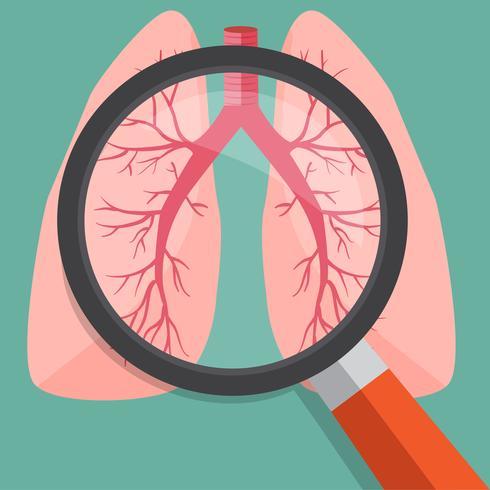 Lupe auf Lungen. Vektorabbildung. vektor
