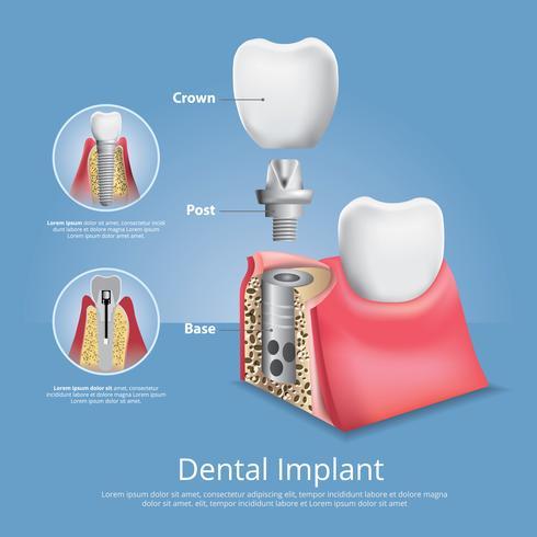 Menschliche Zähne und Zahnimplantat-Vektor-Illustration vektor