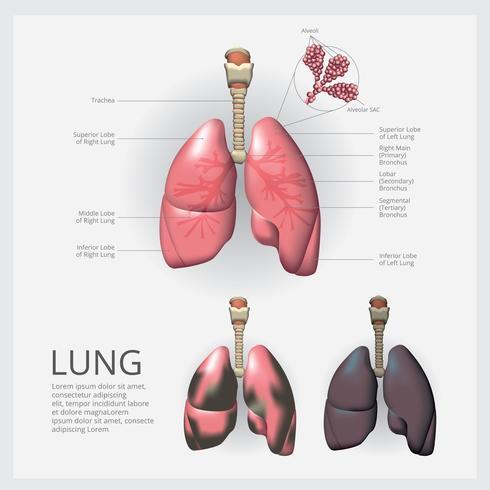 Lunge mit Detail und Lung Cancer Vector Illustration