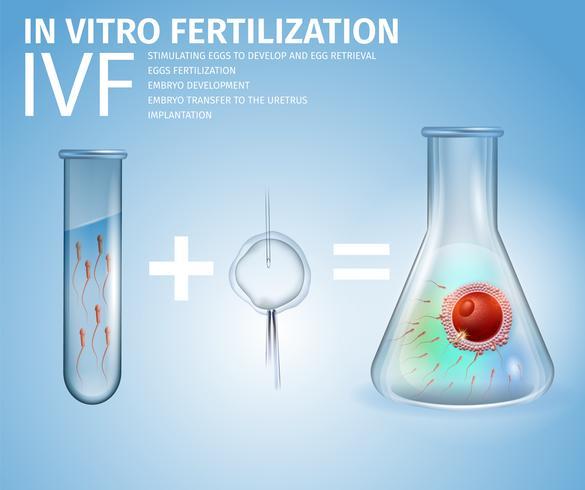 In vitro fertilization Formula vektor