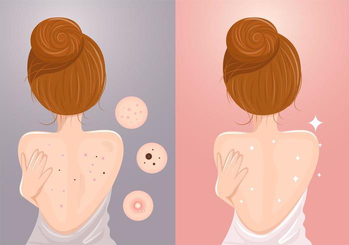 Vor und nach der Frau mit Akne und ohne Akne auf dem Rücken vektor