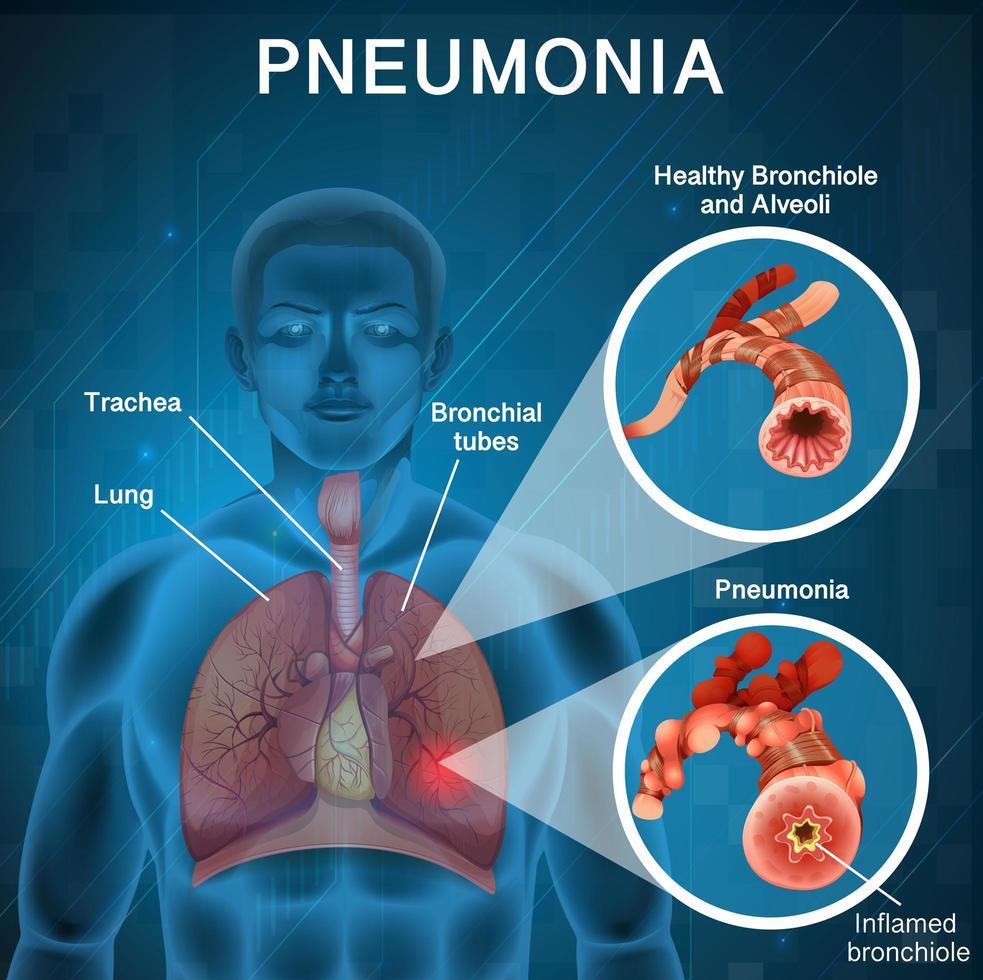 affischdesign för lunginflammation vektor