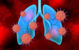coronavirusceller i blåa mänskliga lungor