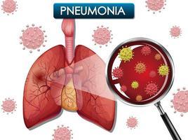 Lungenentzündungsplakat mit Lungen und Viruszellen