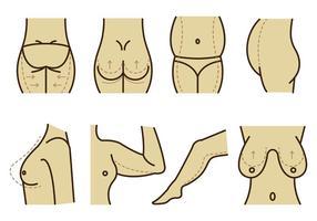 Set av plastikkirurgi vektor