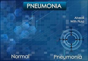 Plakatentwurf für Lungenentzündung auf blauem Hintergrund