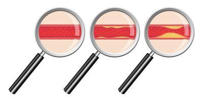 Arteriosklerose isoliert auf weißem Hintergrund vektor