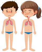 kranker Junge und Mädchen mit Coronavirus