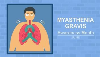 myasthenia gravis är neuromuskulär sjukdom vektor
