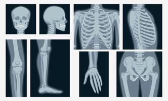 verschiedene Röntgenaufnahmen des menschlichen Körperteilsatzes vektor