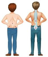 män visar smärta i ryggen