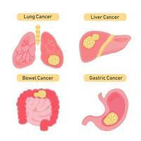 Arten von Organ-Krebs-Design vektor