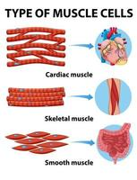 Art der Muskelzellen Diagramm