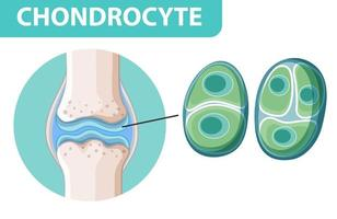 informativ affisch av kondrocyt