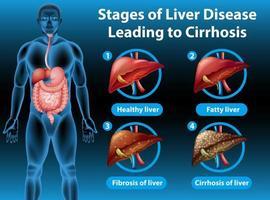 Stadien der Lebererkrankung, die zu Zirrhose führen