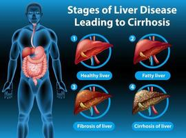 stadier av leversjukdom som leder till cirros