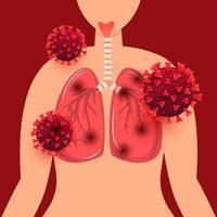 mänskliga lungor infekterade med coronavirusinfektionskoncept
