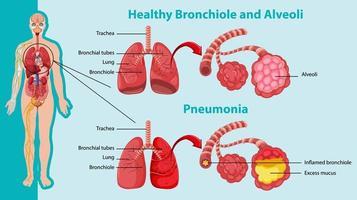 friska och ohälsosamma för mänskliga lungor