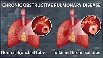 kronisk obstruktiv lungsjukdom