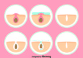 Pimple rengöringsvektor