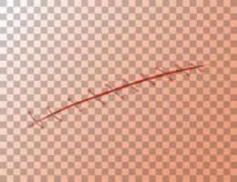 Wundnaht auf transparentem Hintergrund vektor