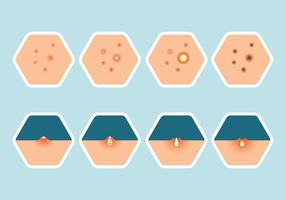 pimple ikoner uppsättning vektor
