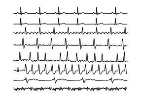 Herz-Rhythmus-Grafik-kostenloser Vektor