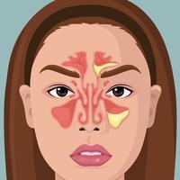 Kvinna Med Illustration Of Paranasal Sinus vektor