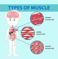 typer av muskelcelldiagram