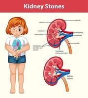 mänskliga njurstenar tecknad stil infographic