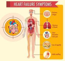 Informationen zu Herzinsuffizienzsymptomen Infografik vektor
