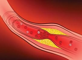 Arterien mit verstopftem Fett, das Blutgerinnsel verursacht. vektor