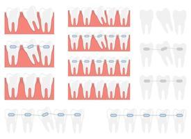 Klammern Vektor-Design Illustration Set isoliert auf weißem Hintergrund vektor