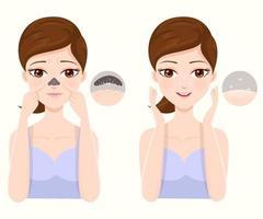 hur man behandlar akne på igensatt näsa vektor