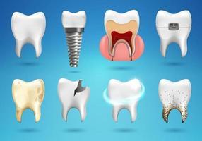 Zähne groß in realistischen 3D-Stil gesetzt. realistisch gesunder Zahn, Zahnimplantat, Karies, gebrochen, Zahnspangen. vektor