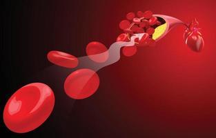 Der Fluss der roten Blutkörperchen wird durch Atherome blockiert. vektor
