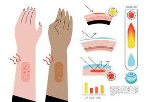 Ultraviolett Infographic Elements Vector Flat Illustration