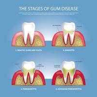 menschliche Zähne Stadien der Zahnfleischerkrankung Vektorillustration vektor
