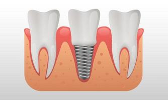 Zahnimplantatstruktur menschliche Zähne und Zahnimplantatvektorillustration vektor