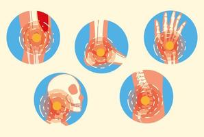 Gelenkschmerzen bei Arthritis vektor