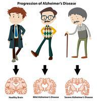 En framsteg av Alzheimers sjukdom vektor