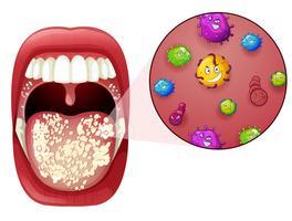 Eine menschliche Mund-Virus-Infektion