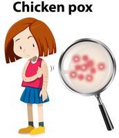 Ung tjej med kycklingpox vektor