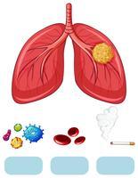 Lungcancer diagram med virus och cigarett vektor