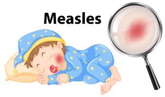 En vektor av Measles på Baby Face