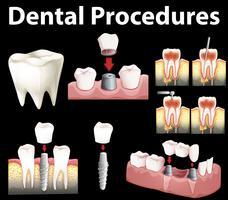 Dentale procedurer för att göra falsk tand vektor