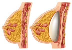 Ein Vektor von weiblichen Brustimplantaten