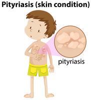förstorad pityriasis på ung pojke vektor